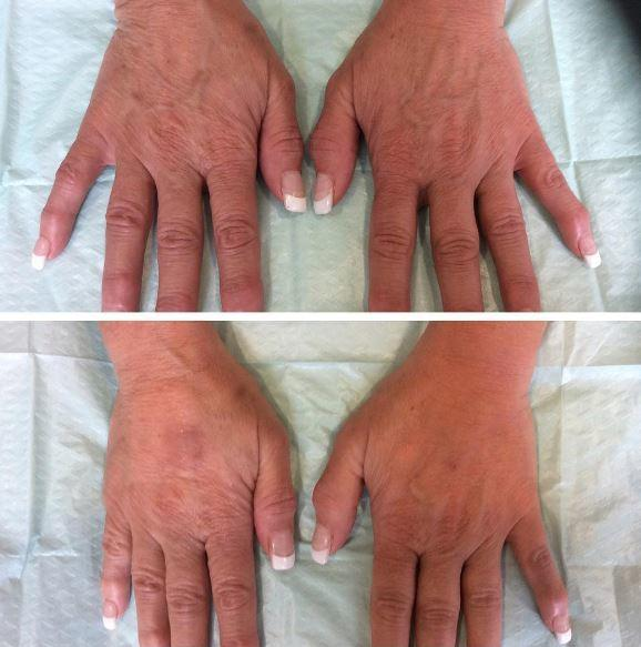 Hand Rejuvenation by Liebe Aesthetics Sutton Coldfield