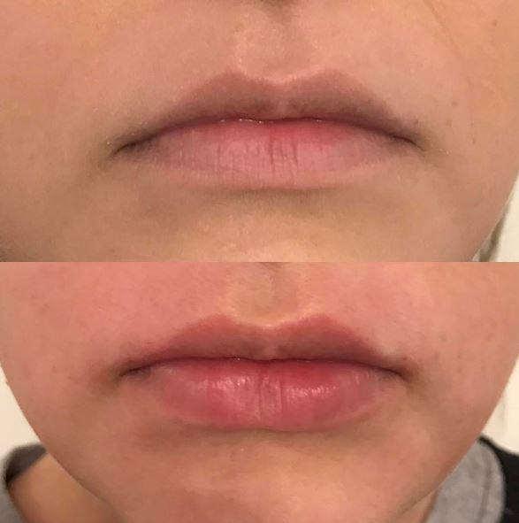 Lip Enhancements by Juvederm - Liebe Aesthetics Sutton Coldfield Birmingham